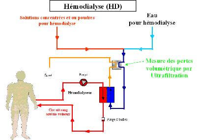 La salle de traitement d'eau pour hémodialyse