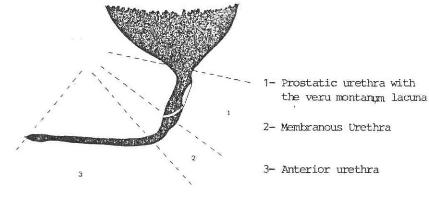 Posterior urethral valve anatomy
